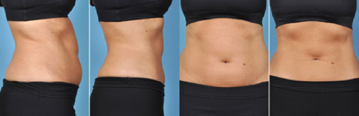 coolsculpting-results
