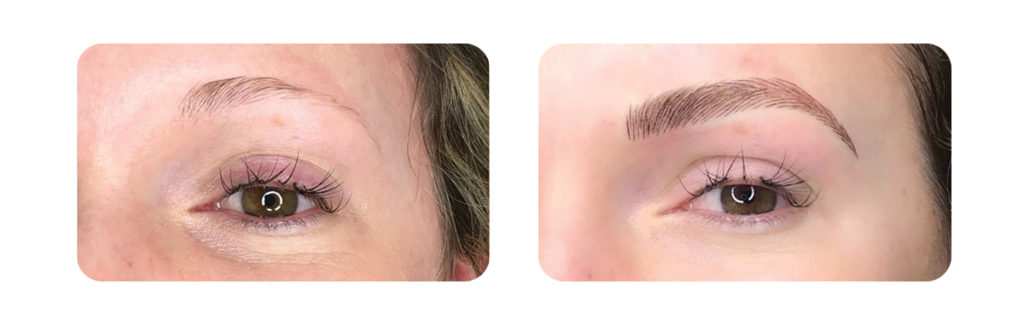 Microblading Specialists In Philadelphiabucky Plastic Surgery
